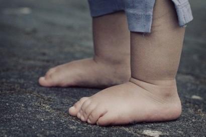 Развитие детской стопы: особенности, нарушения, мониторинг